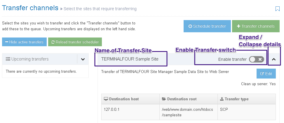 Screenshot of Transfer Channels screen with the Name, Enable and Expand options highlighted